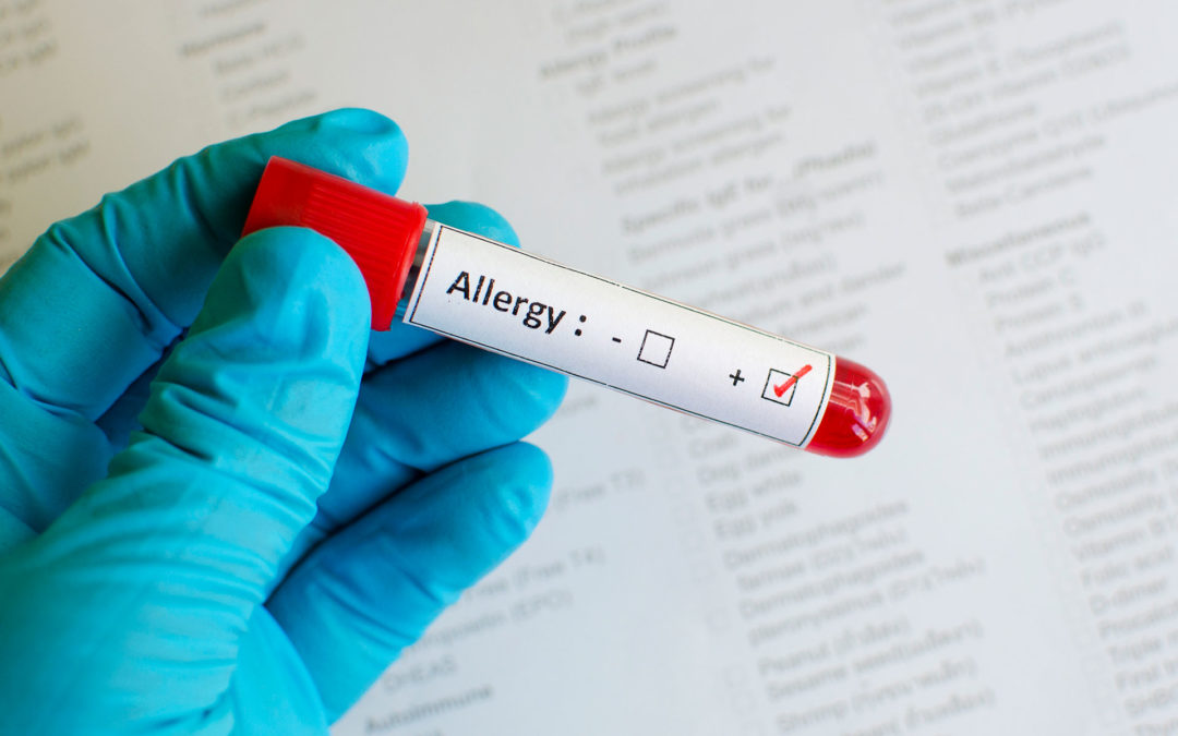 The Importance of Allergy Testing